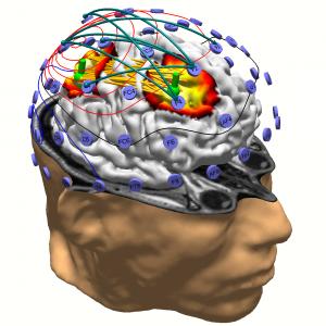 Neuroscan - EEG ERP EP