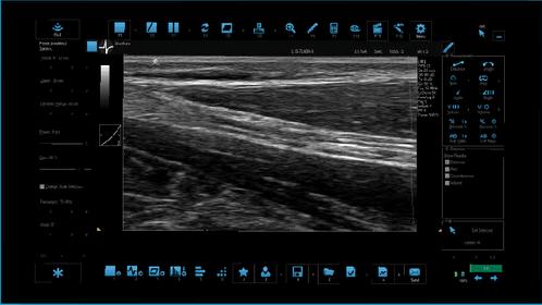 B Mode Median Nerve Long Axis